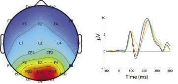 Image of EEG